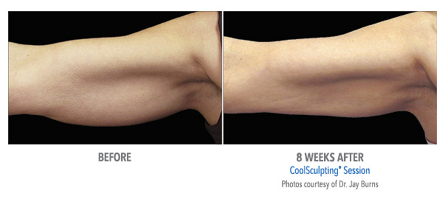 Coolsculpting for arms available at Jotani Aesthetics Pell City Alabama | 205.753.1693