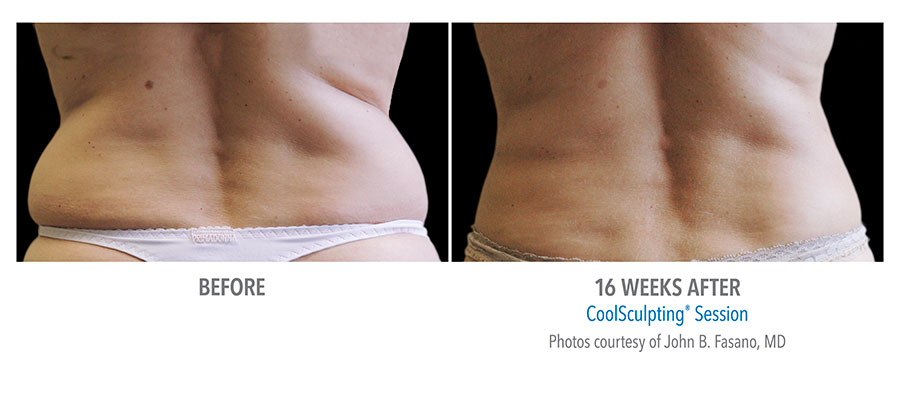 Coolsculpting for Flanks Love Handles available at Jotani Aesthetics Pell City Alabama | 205.753.1693